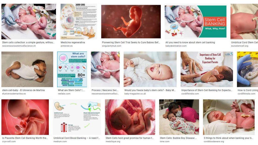 Las celulas madre del cordon umbilical y sus usos para salud del bebe